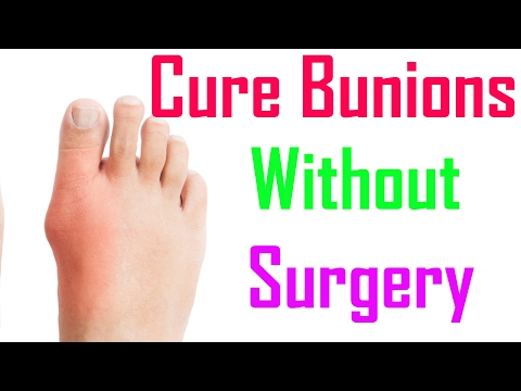 Ways Treat Bunions Without Surgery