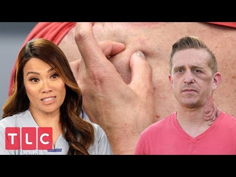 Dr. Lee Examines a Patient Suffering from Painful Tumors   Dr. Pimple Popper