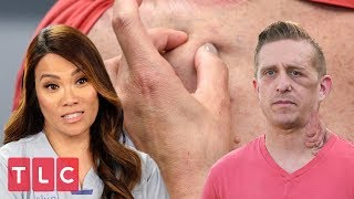 Dr. Lee Examines a Patient Suffering from Painful Tumors | Dr. Pimple Popper