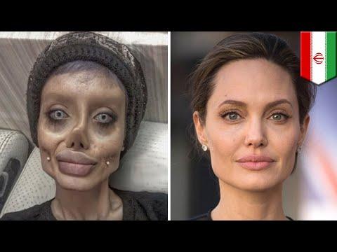アンジェリーナ・ジョリーになりたい!50回以上の整形手術を受けた女性 - トモニュース