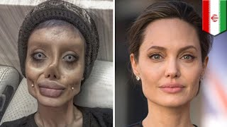 アンジェリーナ・ジョリーに憧れるあまり、50回以上の整形手術を受けた1...