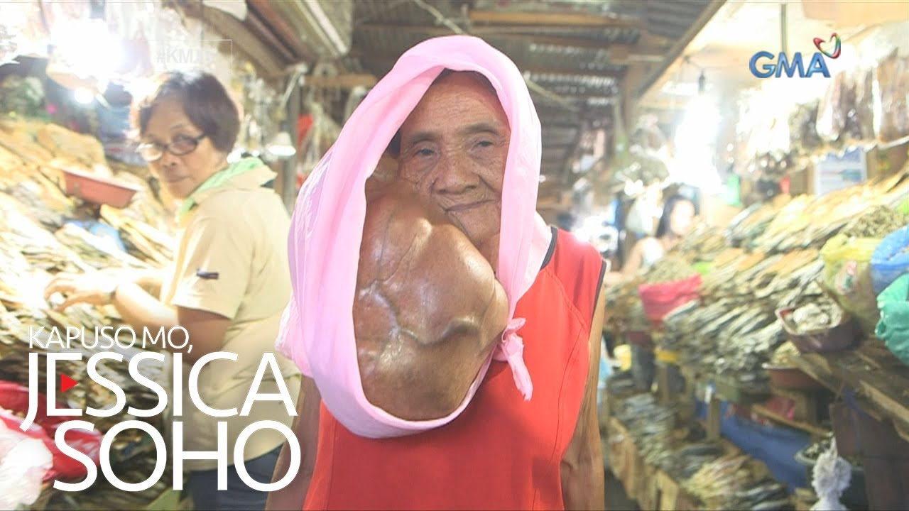 ang mukha ni medusa Mapanlinlang ang gamit ng medusa rito lalo kung babalikan ang ugat  lalo pa't ang kawangis ni  narito rin ang pagtanaw sa kabilang mukha niya na.