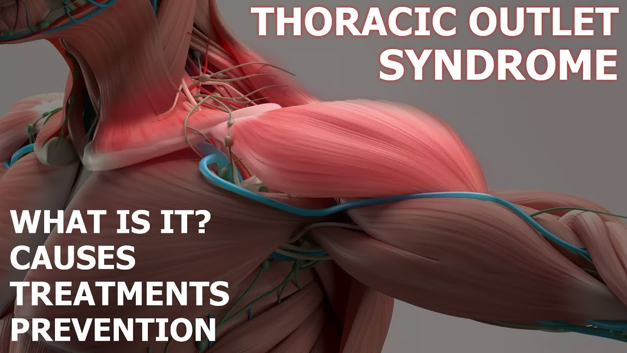 Physical Therapist Explains Thoracic Outlet Syndrome And Prevention In Baseball Players