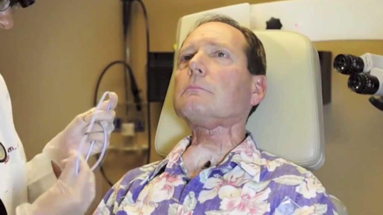 laryngectomy voice prothesis