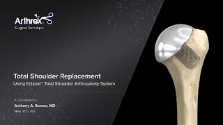 Total Shoulder Replacement Using Eclipse™ Total Shoulder Arthroplasty System