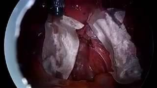 Stage III Endometriosis, Second Look.