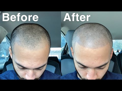 SMP (SCALP MICRO PIGMENTATION) SESSION NUMBER 2 FROM SCALP MICRO USA