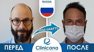 пересадка волос в турции Алексей и его вторая операция по пересадке волос Отзывы Clinicana