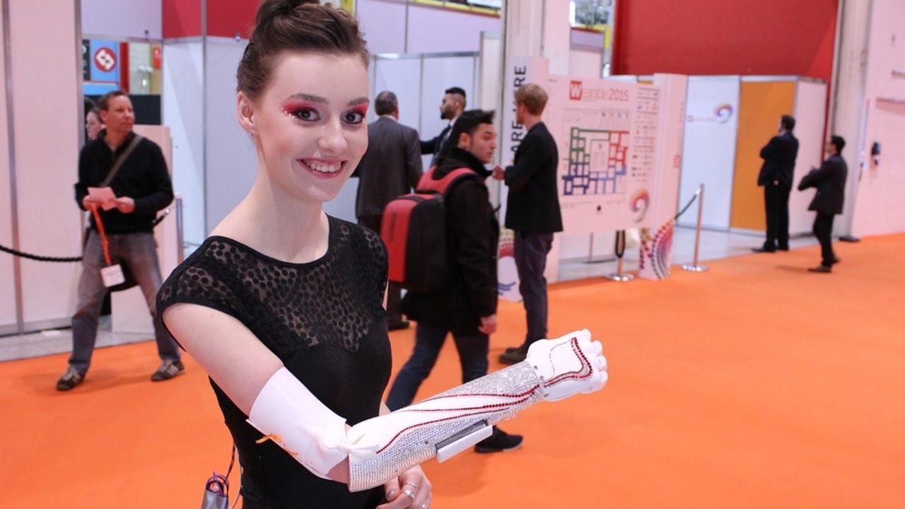 Бионический протез руки - первая примерка Bebionic© - YouTube