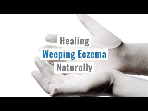 Tips for Weeping Eczema Naturally  – Treating Eczema Naturally