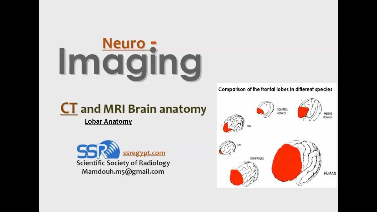 Lobar Brain Radiological Anatomy - Prof Dr. Mamdouh Mahfouz (In ...