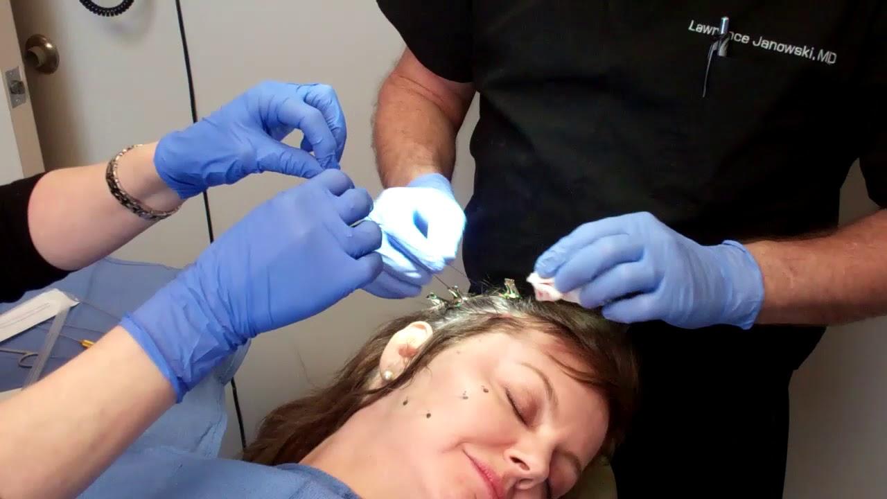 Unique 'Thread Lift' Facelift Technique by Dr George Mayson