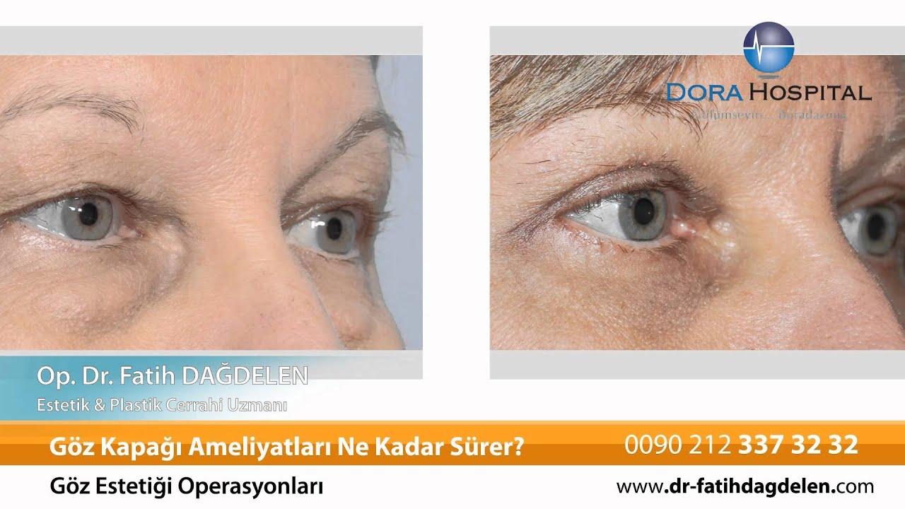 Göz kapağı düşüklüğü (Ptozis) nedir ve tedavisi