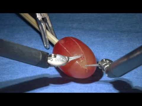 Robotic Kidney Surgery