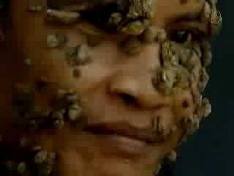 树人Treeman (严重警告  内容可能令人不安或反感)