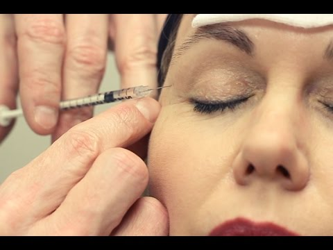 This Is Beauty | Botox Injections | For Frown, Bunny Lines and Facial Crinkles