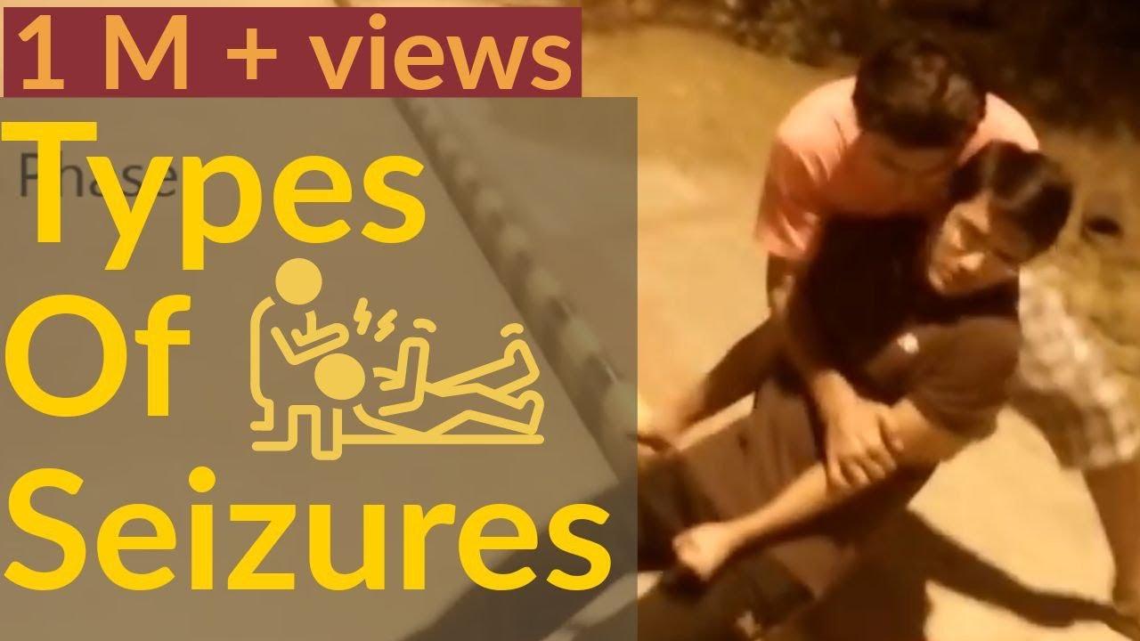 TYPES OF SEIZURES