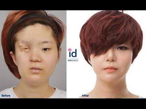 Shy korean girl with facial deformity transforms into a beautiful lady through plastic surgery