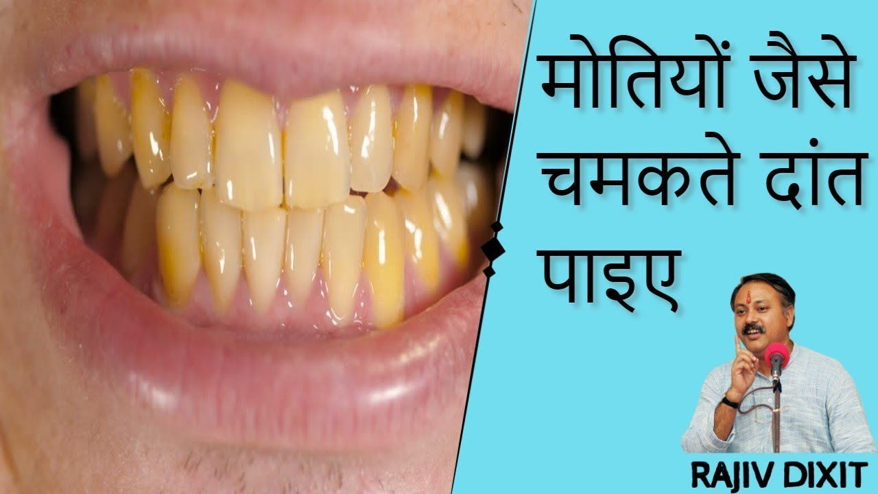 4 65 MB] Best Way To Whiten Teeth । Teeth Whitening at Home