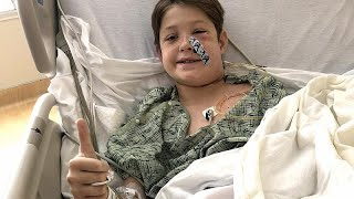 'Miracle' as boy survives fall onto BBQ skewer which impaled his skull