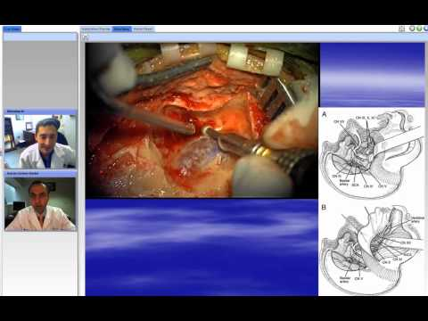 The Grand Rounds: Clip Ligation of Challenging Posterior Circulation Aneuryms