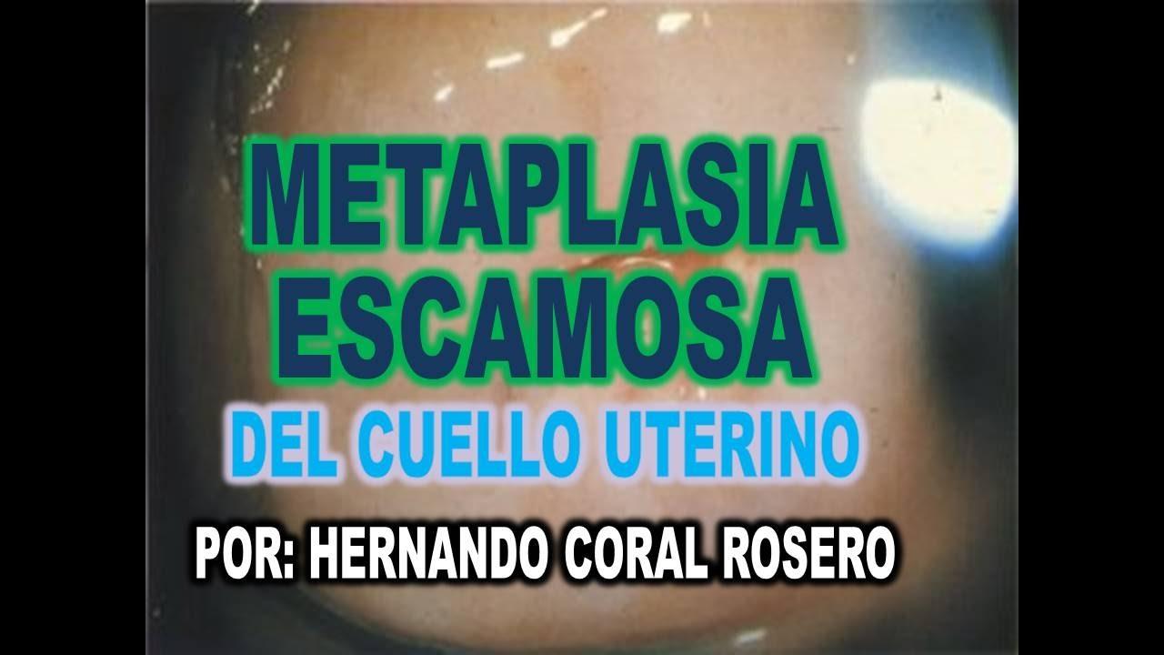 cervicitis cronica activa con metaplasia escamosa madura