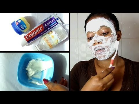 hqdefault - Baking Soda Toothpaste For Acne