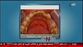 الدكتور   التقنيات الحديثة فى عالم تجميل الاسنان مع د.شادى حسين