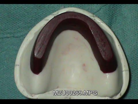 """Résultat de recherche d'images pour """"bourrelets d'occlusion dentaire en stens"""""""