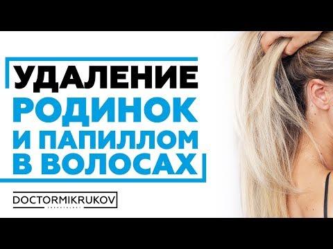 Удаление родинок и папиллом в волосах #удалениеродинкиростов