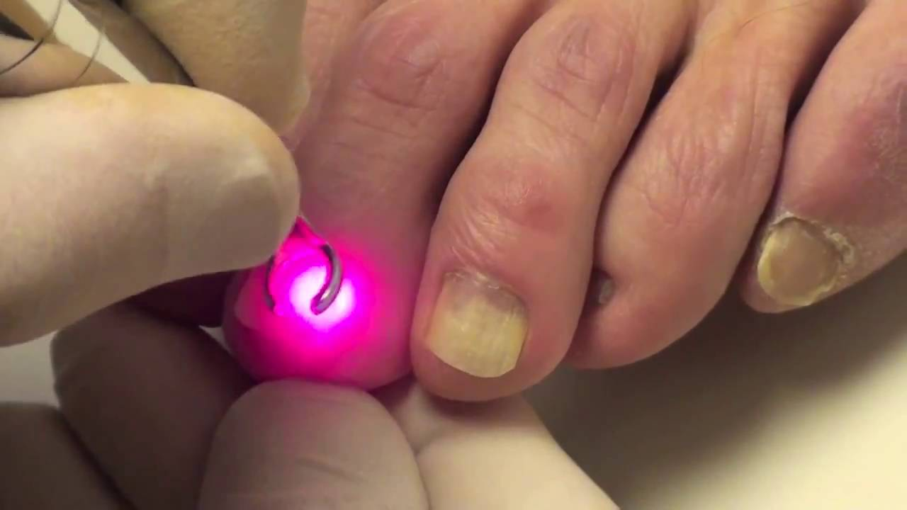 Nail fungus Laser therapy treatment - YouTube