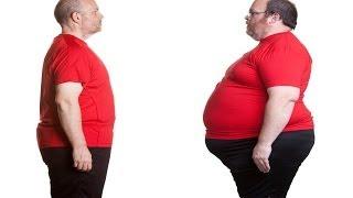 Weight Loss for Sleep Apnea Treatment