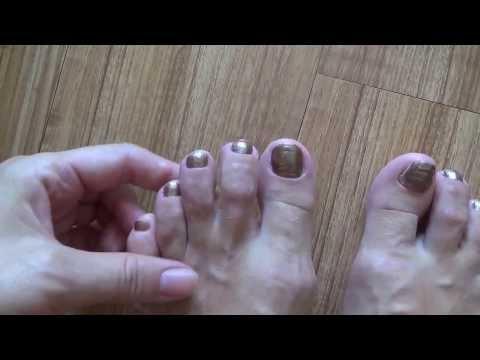 Ноготь слез на ноге