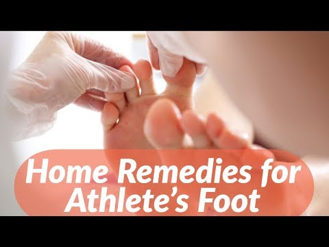Home Remedies for Athlete's Foot That Work Naturally