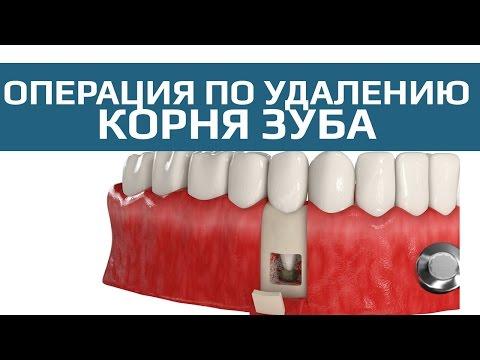 Киста зуба: чем опасна, причины и последствия
