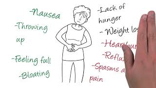 Gastroparesis Signs & Symptoms (ex. Nausea, Weight Loss) Gastroparesis is a gastrointestinal disorde.
