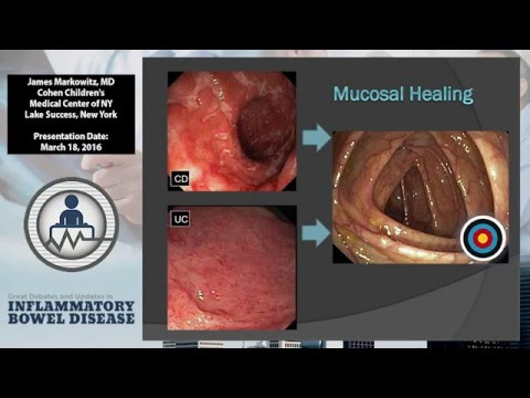 """Picking a Treatment Target: Is it as """"Simple"""" as Mucosal Healing?"""