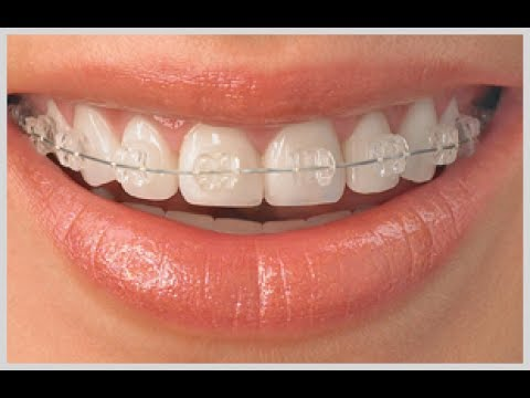 How to put ceramic braces on teeth  Dentalkart  YouTube