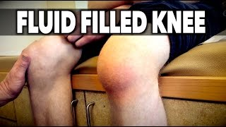 FLUID FILLED KNEE! | Dr. Paul