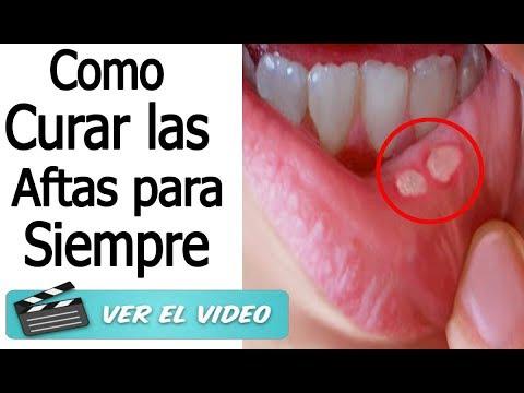 Remedios caseros para quitar las ulceras de la boca