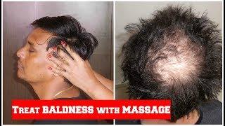 सिर की चम्पी कैसे करें | Head Massage Techniques For Hair Growth | Sushmita's Diaries Hindi