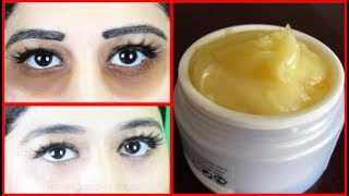 Just Apply This & Remove Dark Circles In 3 Days - Get Rid of Dark Circles - Simple Beauty Secrets