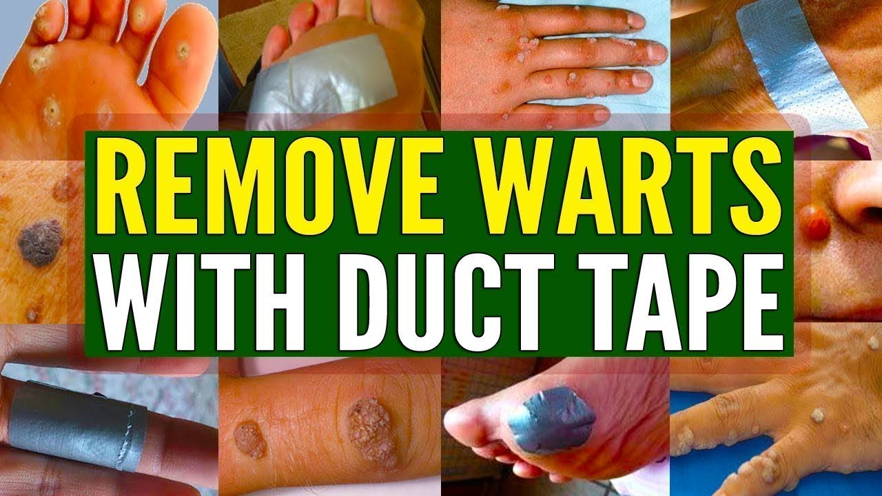 Can You Really Remove Warts With Duct Tape Youtube