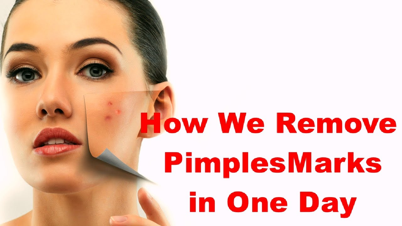 How to Erase a Pimple Scar