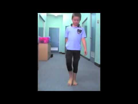 Spiral Thigh Brace for Pigeon Toe Correction