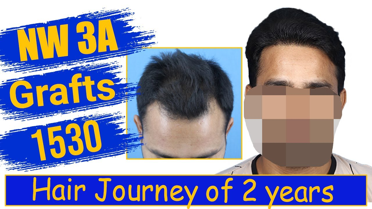 Hair Transplantation: 1530 grafts, Grade 3A @Eugenix Hair Sciences by Drs Sethi & Bansal