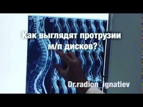 Протрузия межпозвоночного диска - как выглядит на МРТ?