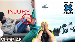 HOW BAD IS MY INJURY?!? | VLOG 46