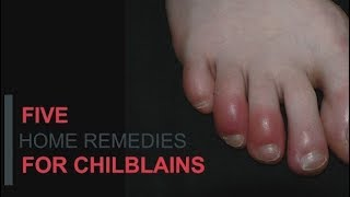 Five Home Remedies For Chilblains