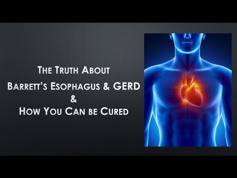 How To Cure Barrett's Esophagus - The Truth About Barrett's Esophagus